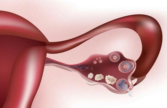 Фазы менструального цикла: фолликулярная, овуляторная и лютеиновая