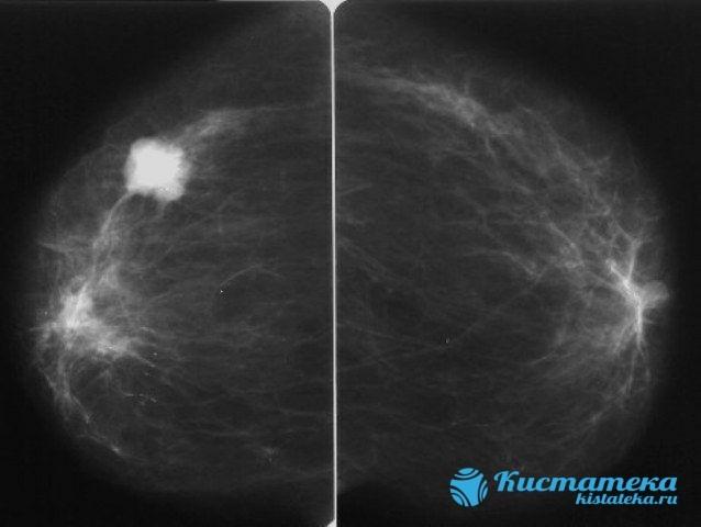 Маммография: что это, как делают, расшифровка результатов