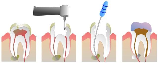 Депульпация зубов: как и зачем проводится, насколько болезненна