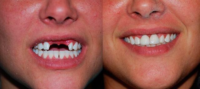 Временные протезы на передние зубы, предназначение и особенности