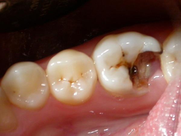 Стекловолоконный штифт в стоматологии – возможность качественного восстановления зуба