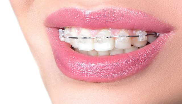 Статья о стоматологии: 7 мифов о брекетах