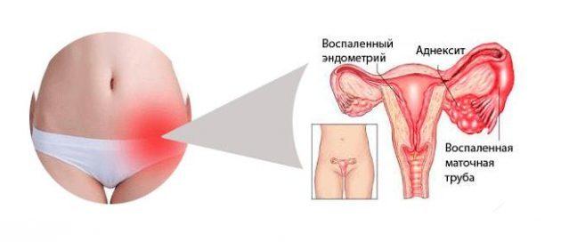 Лечение воспаления яичников у женщин народными средствами