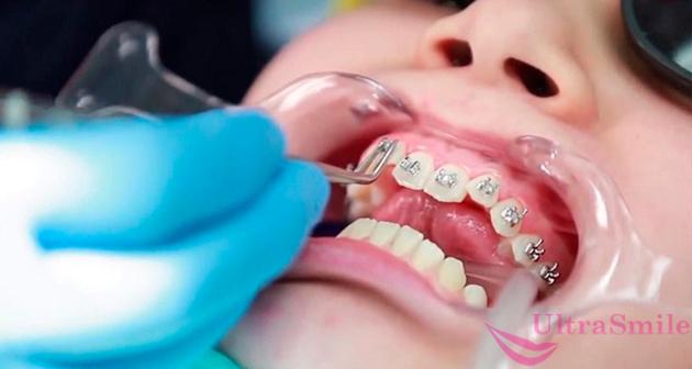 Сколько стоит выпрямить зубы брекетами в 2020 году