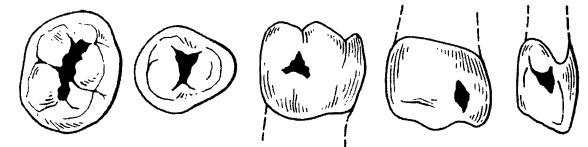 Классификации кариеса: по блэку, по мпб 10, по глубине поражения