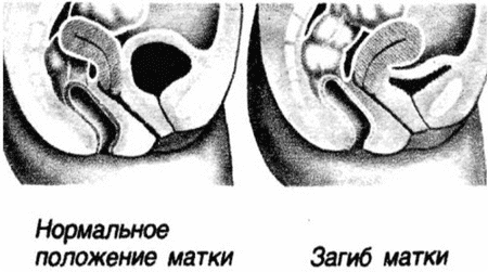 Ретрофлексия матки - причины, признаки, симптомы и лечение