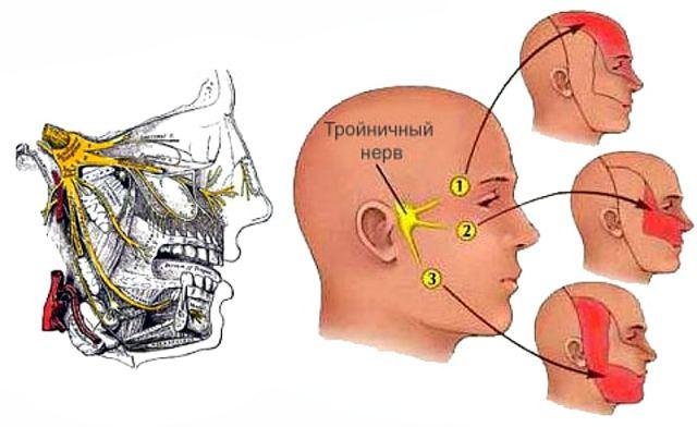 Боль в виске отдает в зубы: почему появляется этот симптом