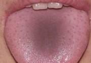 Серый налет на языке у взрослых: причины возникновения, методы лечения