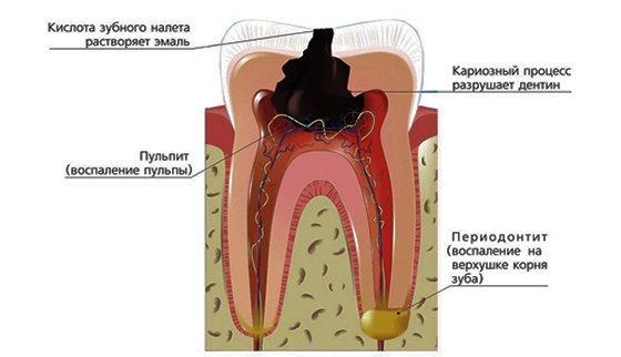 Декомпенсированная форма кариеса – симптомы и лечение цветущего кариеса