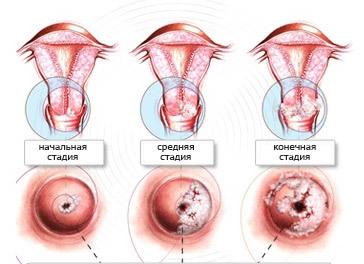 Можно ли умереть от рака шейки матки