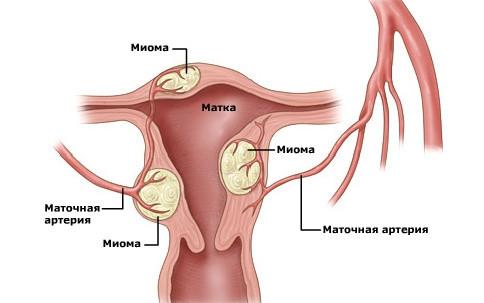 Гомеопатия при миоме матки: достоинства лечения, виды средств, особенности применения