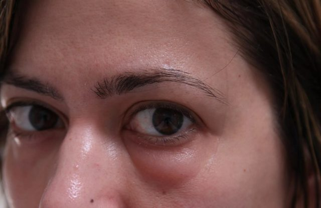 Удаление мешков под глазами: косметология или хирургия, описание способов
