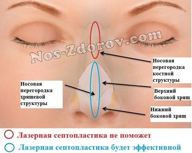 Лазерная коррекция носовой перегородки - исправление искривления: операция на нос