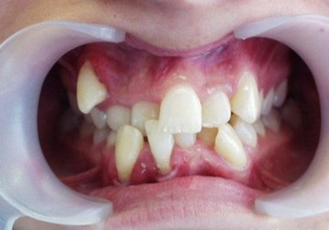 Полиодонтия (гипердонтия) у человека — аномалия развития: избыточное количество зубов