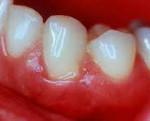 Чем опасен катаральный стоматит и как его правильно лечить?