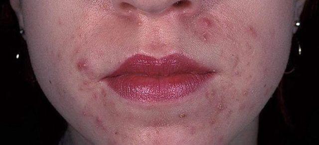 Как проявляется аллергия на косметику: причины, симптомы, лечение, фото