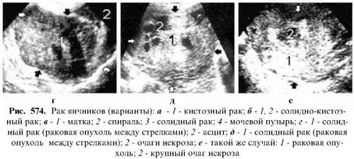 Размеры матки по узи норма; придатки, яичники,подготовка