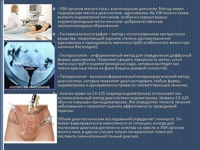 Эндометриоз кишечника: его симптомы и методы лечения