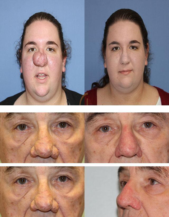 Лечение ринофимы (винного носа, шишковидного носа, носа пьяницы) в израиле