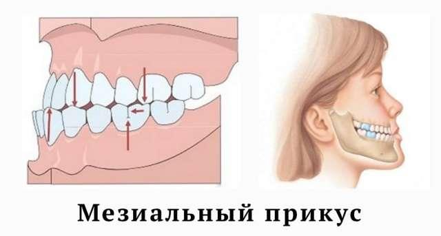 Мезиальный прикус, или прогения - симптомы, причины, методы лечения