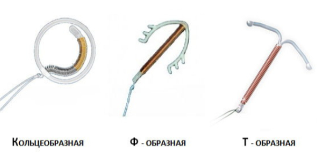 Что представляет собой внутриматочная спираль и больно ли ее ставить