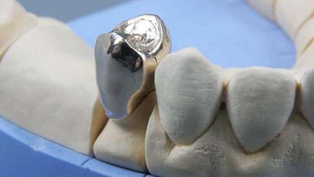 Штампованная коронка: плюсы и минусы, препарирование, отзывы пациентов