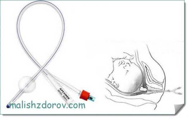 Методы стимуляции родов: препараты, естественные способы, применение катетера
