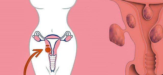 Миома матки: как обойтись без операций и гормональной терапии