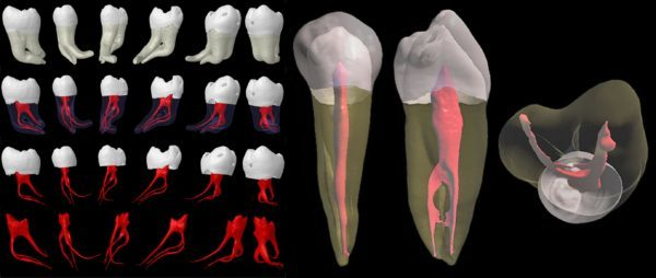 Эндодонтическое лечение зуба это, микрооперация в корневых каналах