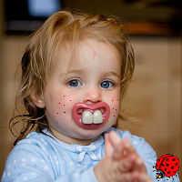 Сыпь при прорезывании зубов у детей - причины возникновения
