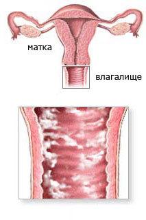 Дисбактериоз в гинекологии: симптомы - подробная информация