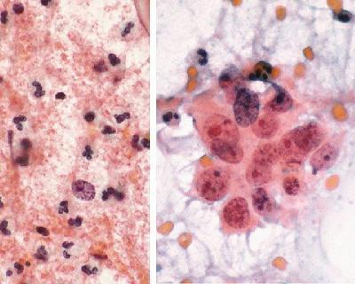 Плоский эпителий в мазке у женщин - норма и патология