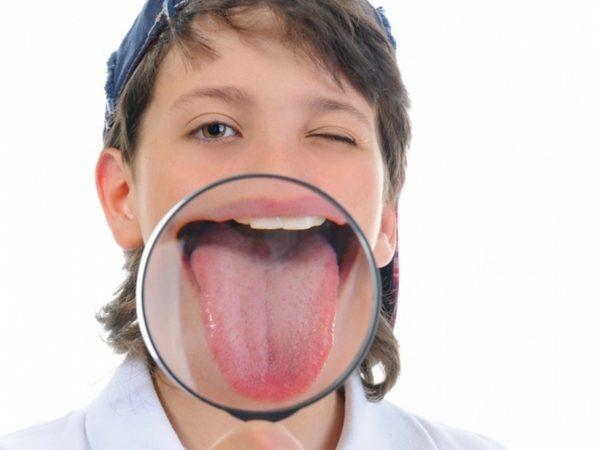 Язык при гастрите: налет, диагностика, как избавиться
