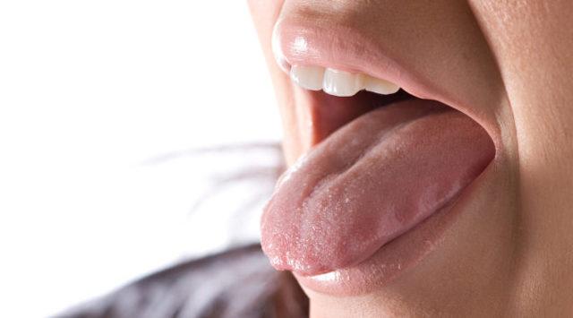 Пятна на языке: фото, возможные заболевания, варианты лечения