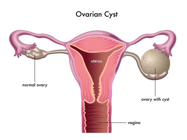Ретенционное образование левого яичника, причины возникновения, лечение