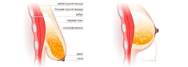 Инволютивные изменения молочных желез: что такое, симптомы, причины и лечение