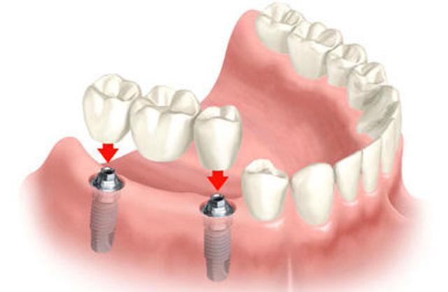 Металлокерамическая коронка плюсы и минусы протезирования, срок службы и уход
