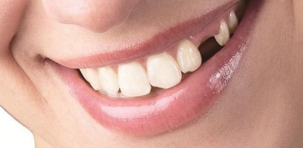 Провокаторы потери зубов и возможные последствия отсутствия лечения