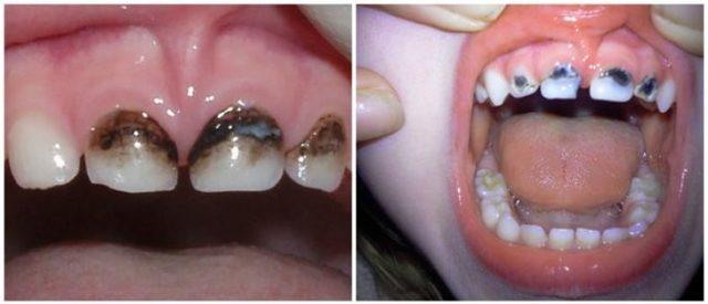 Фторирование или серебрение молочных зубов ребенку: что лучше выбрать