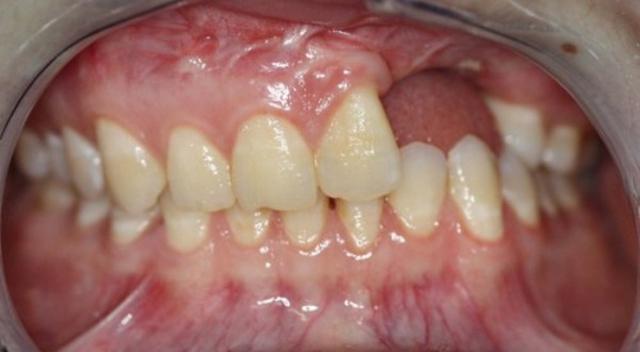 Имплантация без костной пластики — мифы и реальность