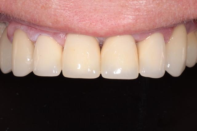 Циркониевые виниры: достоинства и недостатки, порядок установки на зубы