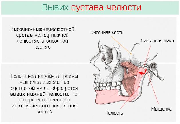 Воспаление челюстного сустава: симптомы, лечение, что делать, если болит челюсть