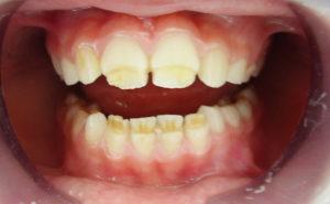 Средство от пятен на зубах: 10 лучших методов отбеливания пятен