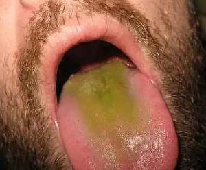 Желто зеленый налет на языке. Причины, способы устранения налета
