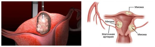 Миома матки: возможные симптомы и признаки при климаксе у женщин