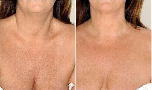 Мезотерапия груди: особенности процедуры для грудных желез, альтернатива - биоревитализация