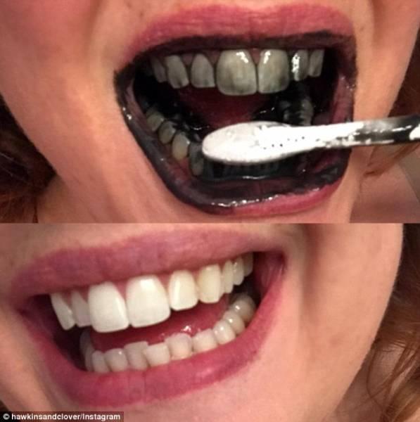 Как отбелить зубы активированным углем, польза и вред метода