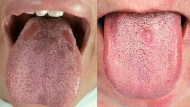 Кровяной пузырь на языке - симптом заболевания или просто болячка?