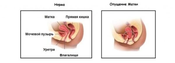 Вентрофиксация матки: техника проведения и возможные последствия