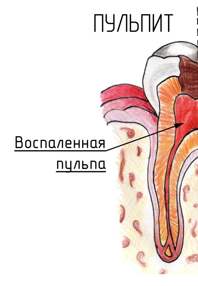 Что делать если застудил зуб - основные способы лечения
